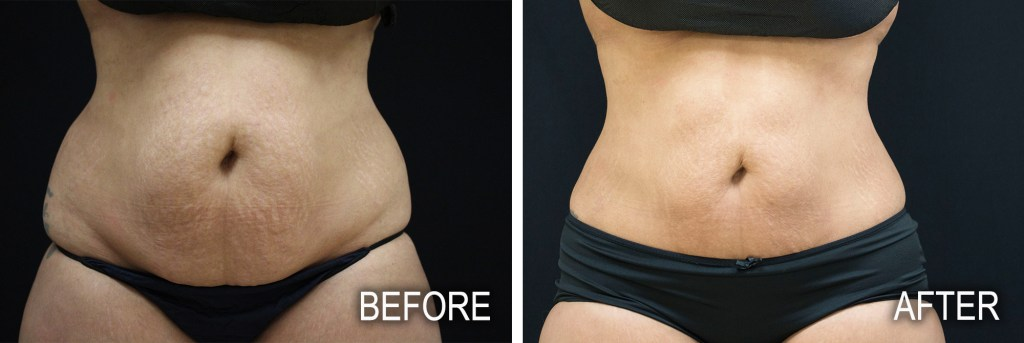 liposuction before after images cosmetic surgery