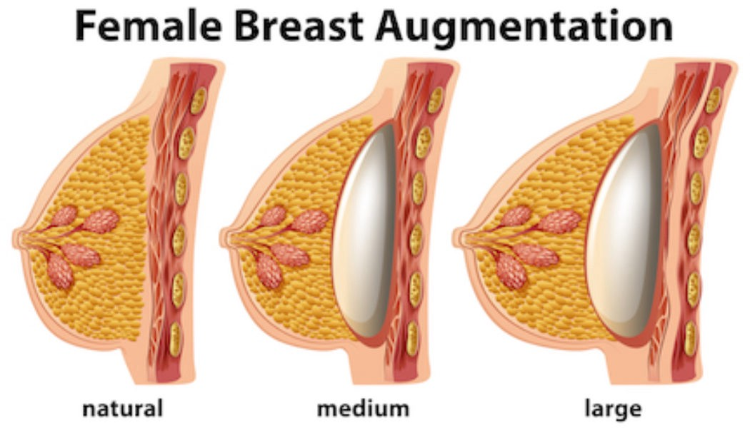 breast augmentation images cosmetic surgery
