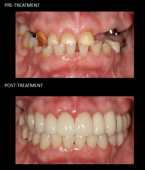 cosmetic dentistry images sydney dentists clinics
