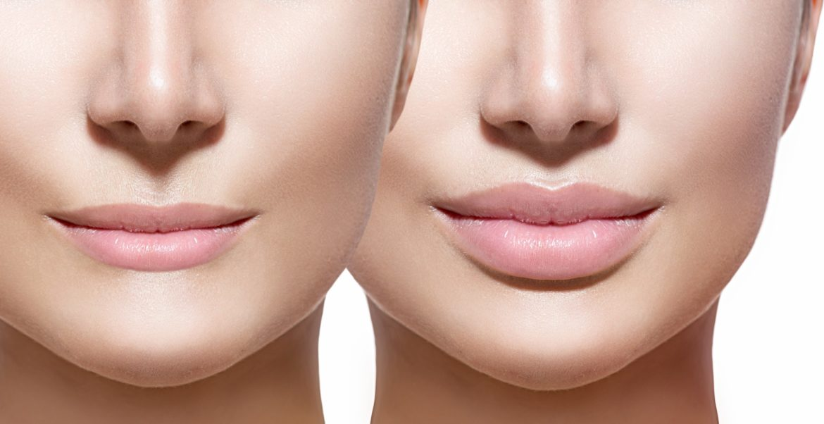 cosmetic surgery images sydney australia