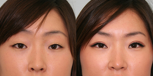 eyelid surgery eyelids cosmetic surgery sydney