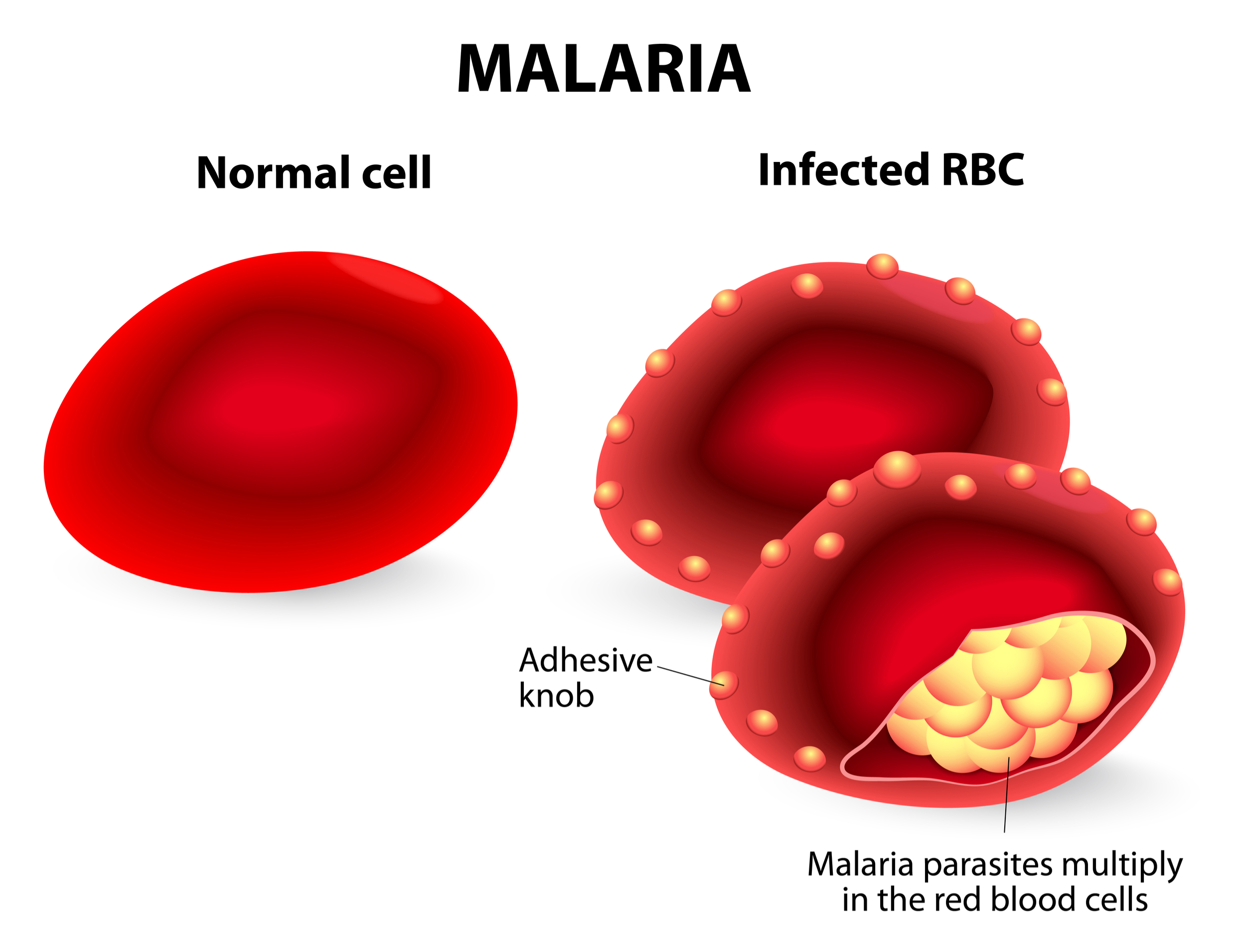 malaria images for presentations infectious disease pictures sydney africa cells cellular
