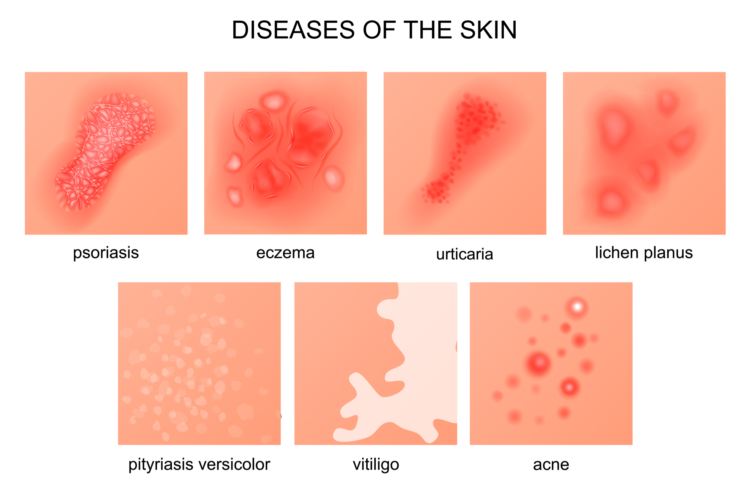 skin diseases images for presentations infectious disease images