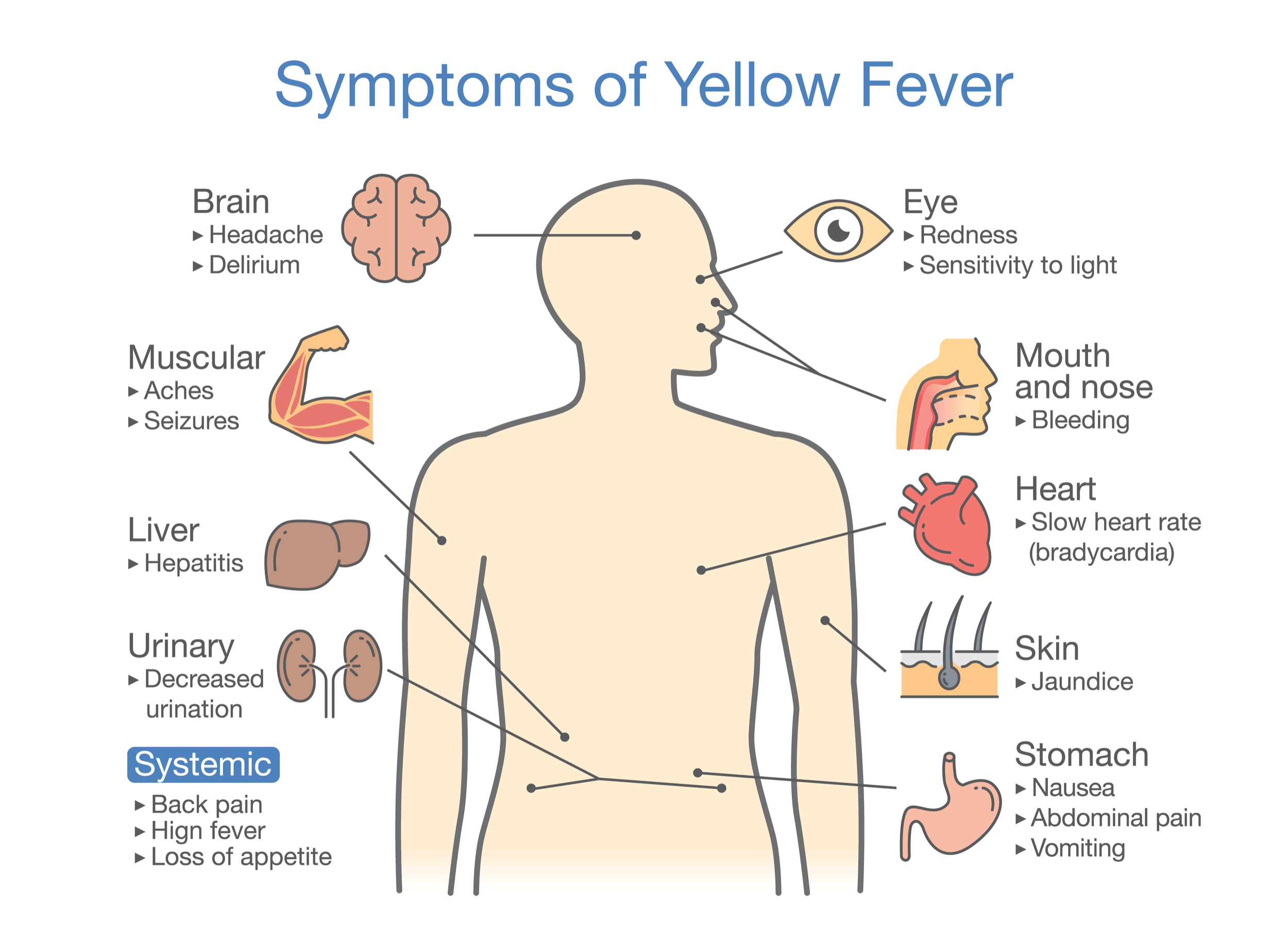 yellow fever images infectious diseases pictures for presentations
